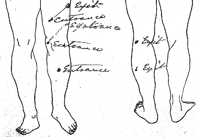 Stephen Finnegan Civil War wounds